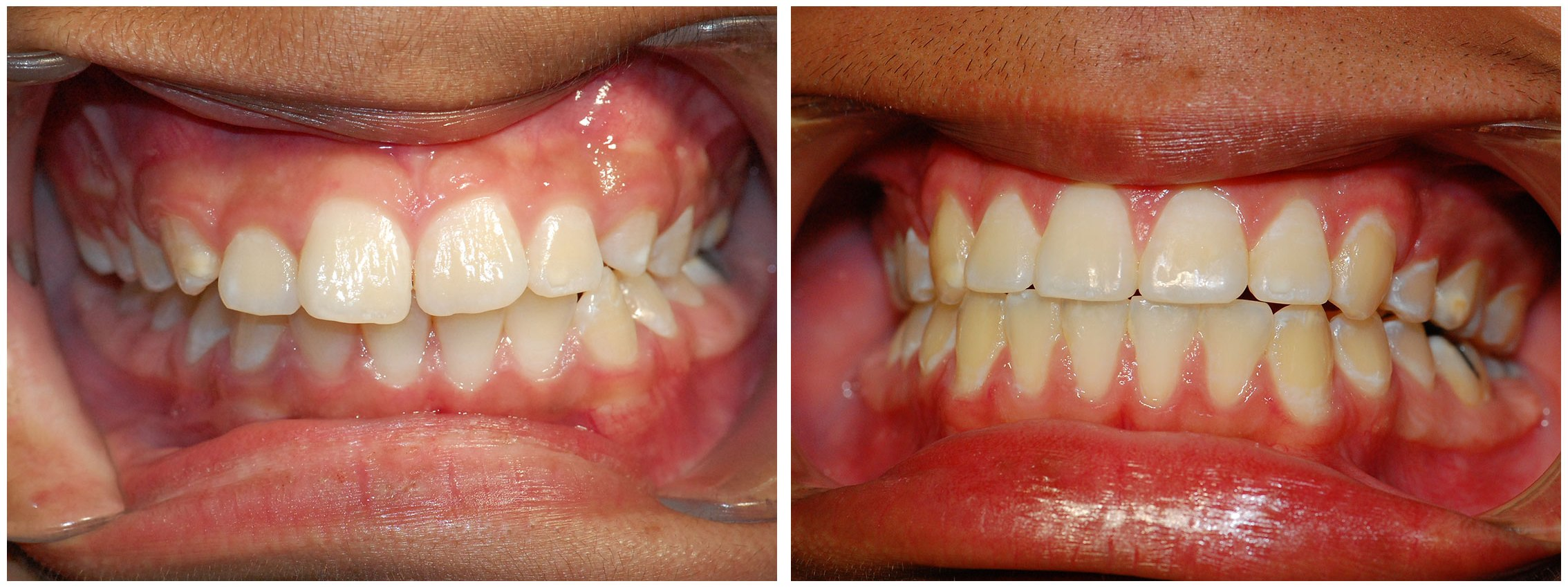 Childrens Dental Braces Treatment Before & After
