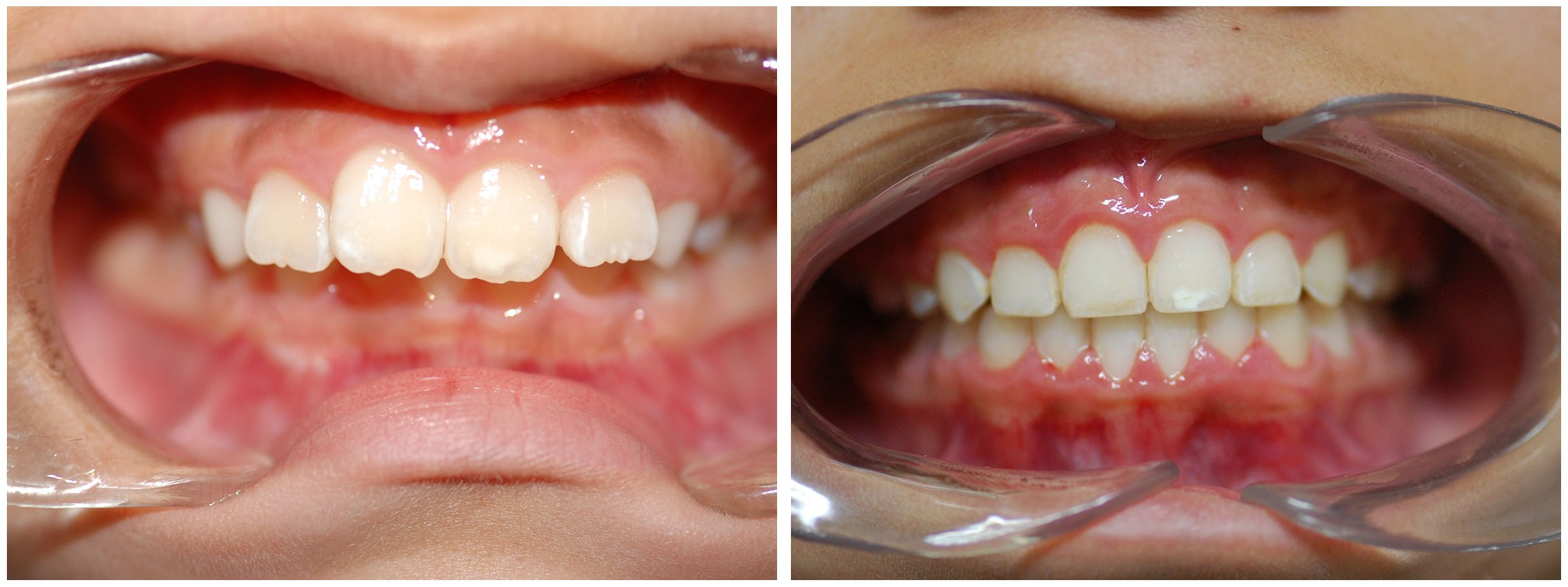 Childrens Dental Braces Before & After