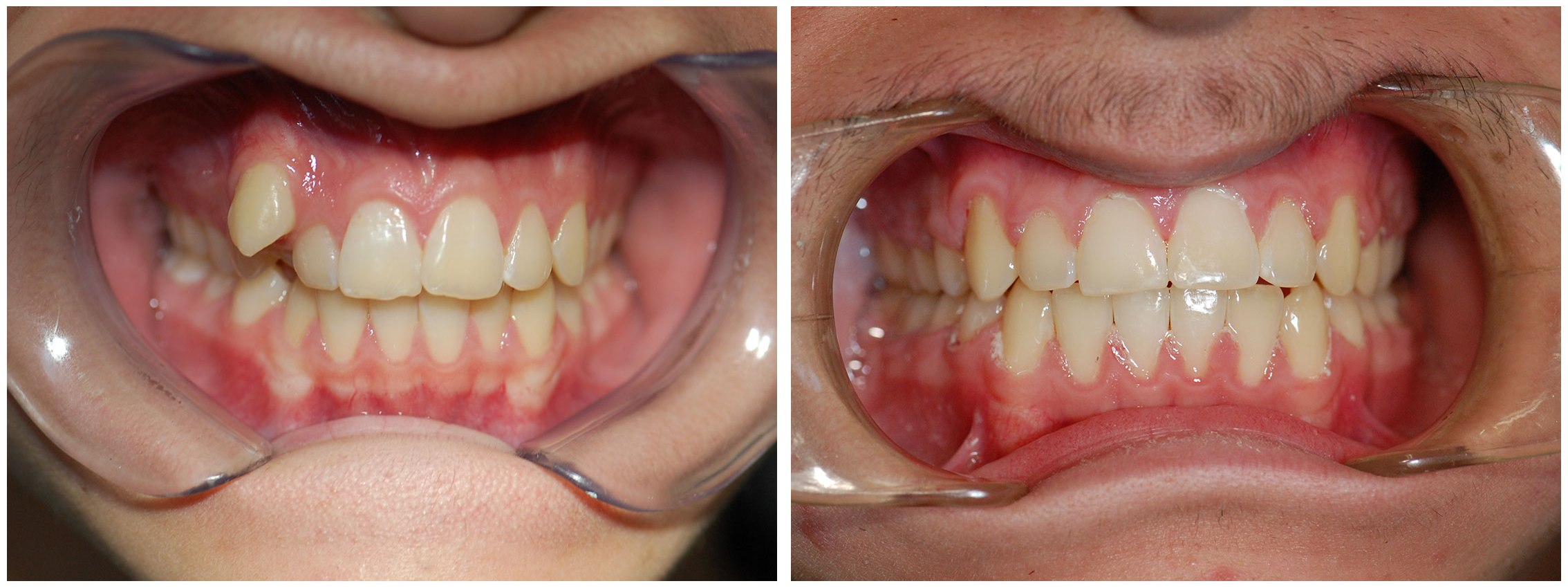 Infant Dental Braces Before & After