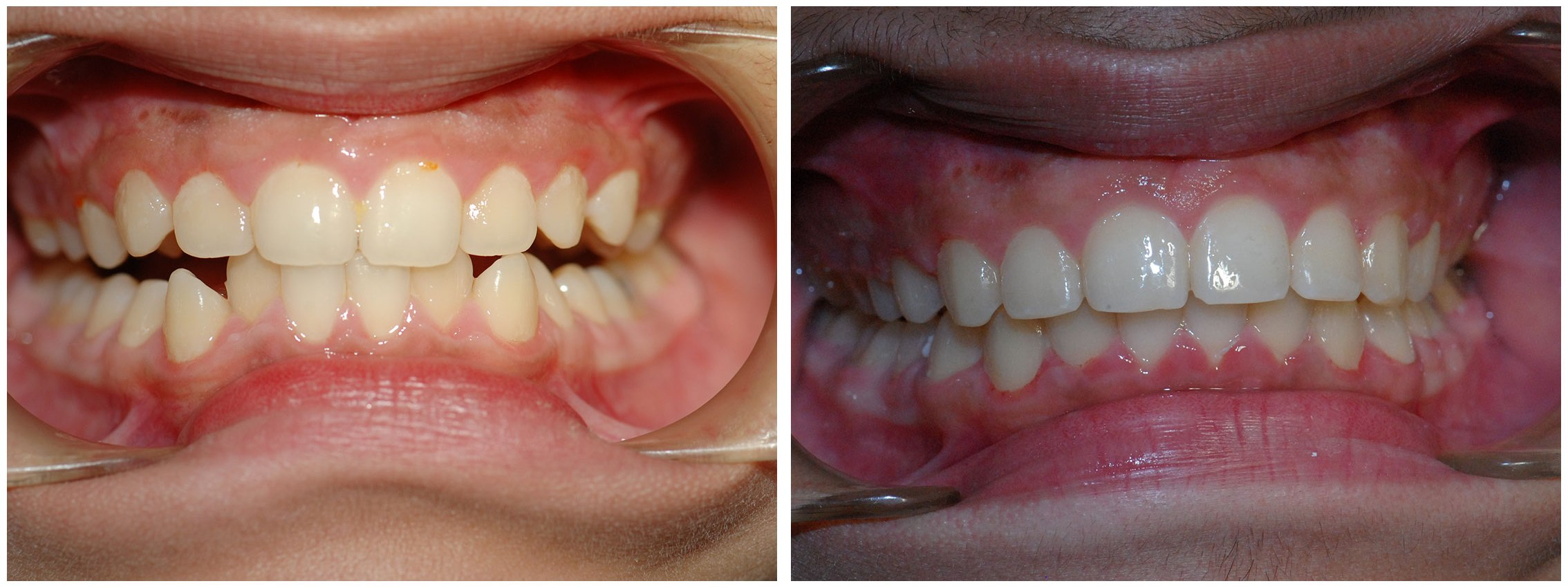 Orthodontic Dental Braces Treatment Before & After