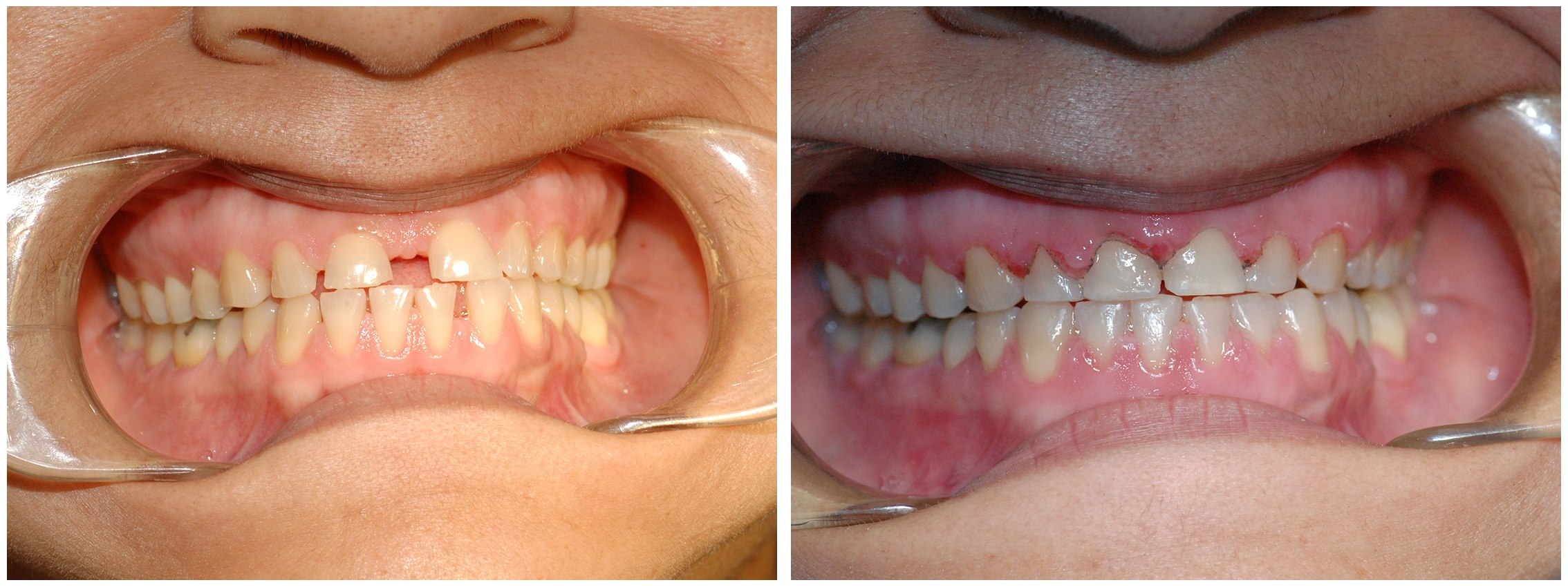 Orthodontic Dental Braces Before & After