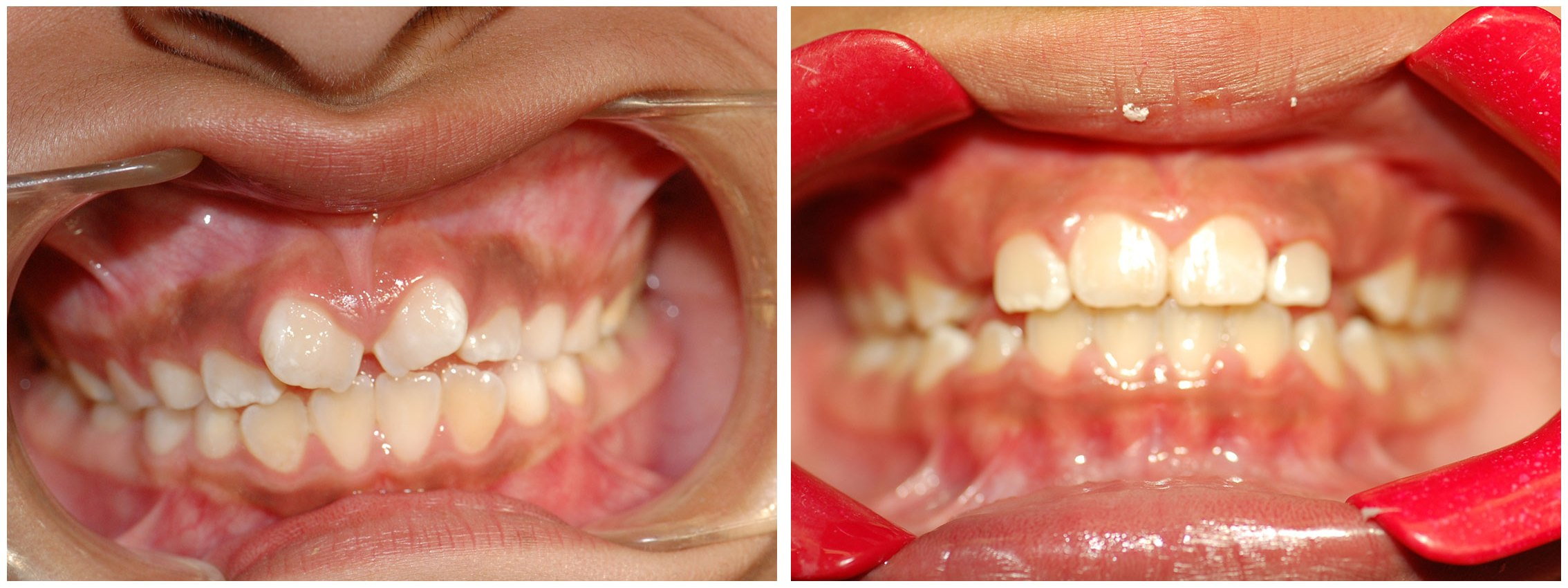 Orthodontist Dental Braces Treatment Before & After
