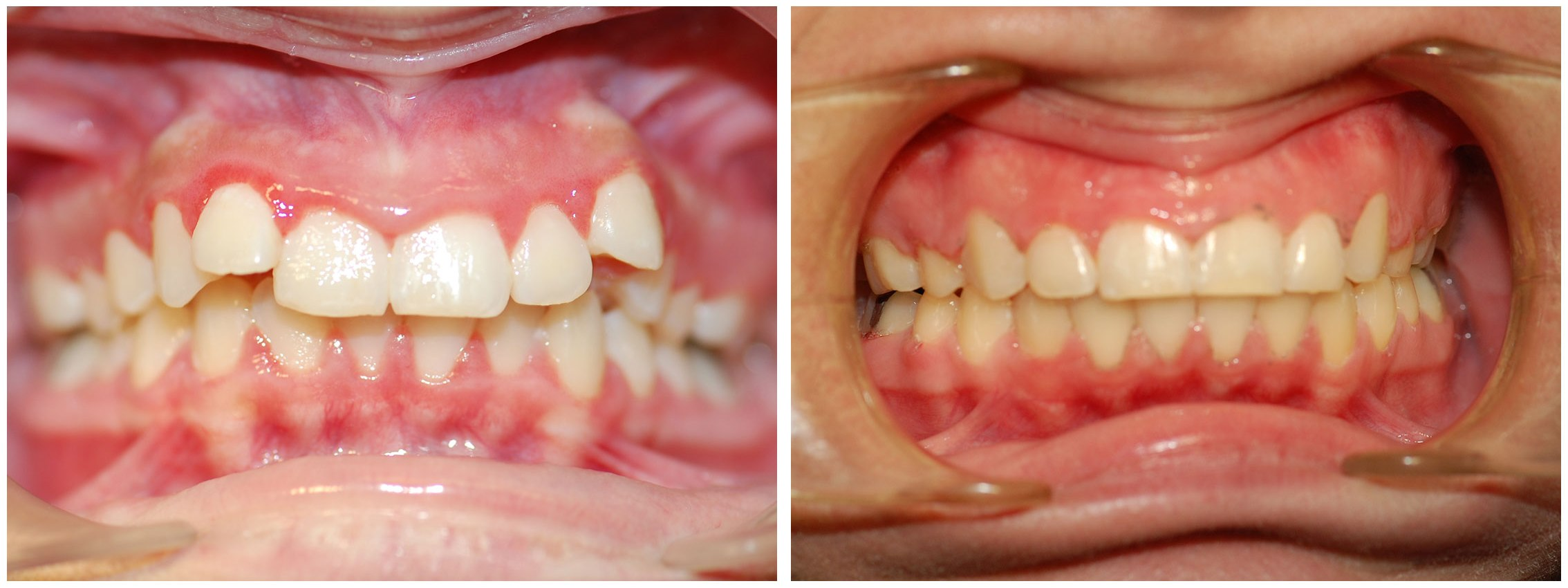 Orthodontist Dental Braces Before & After