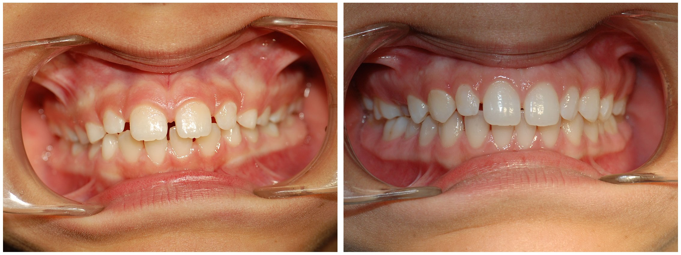 Pediatric Dental Braces Treatment Before & After