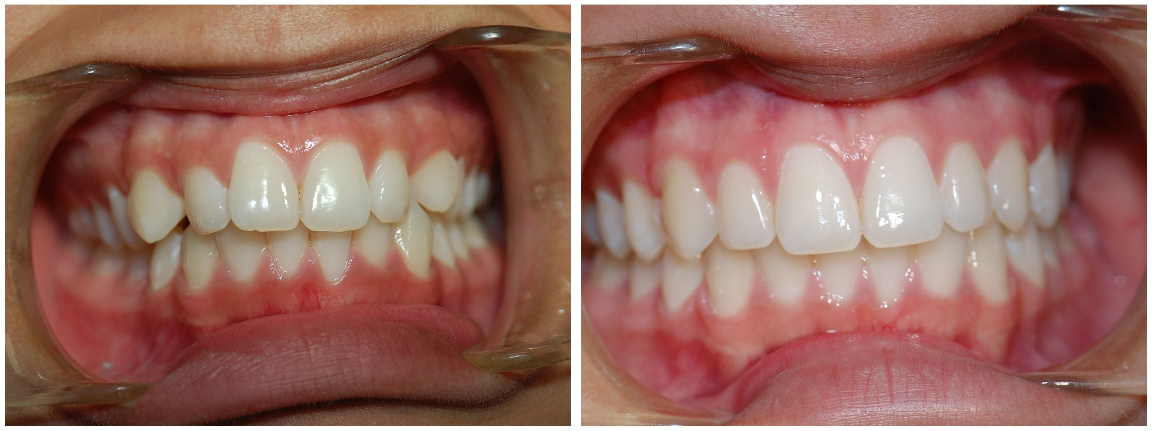 Pediatric Dental Braces Before & After