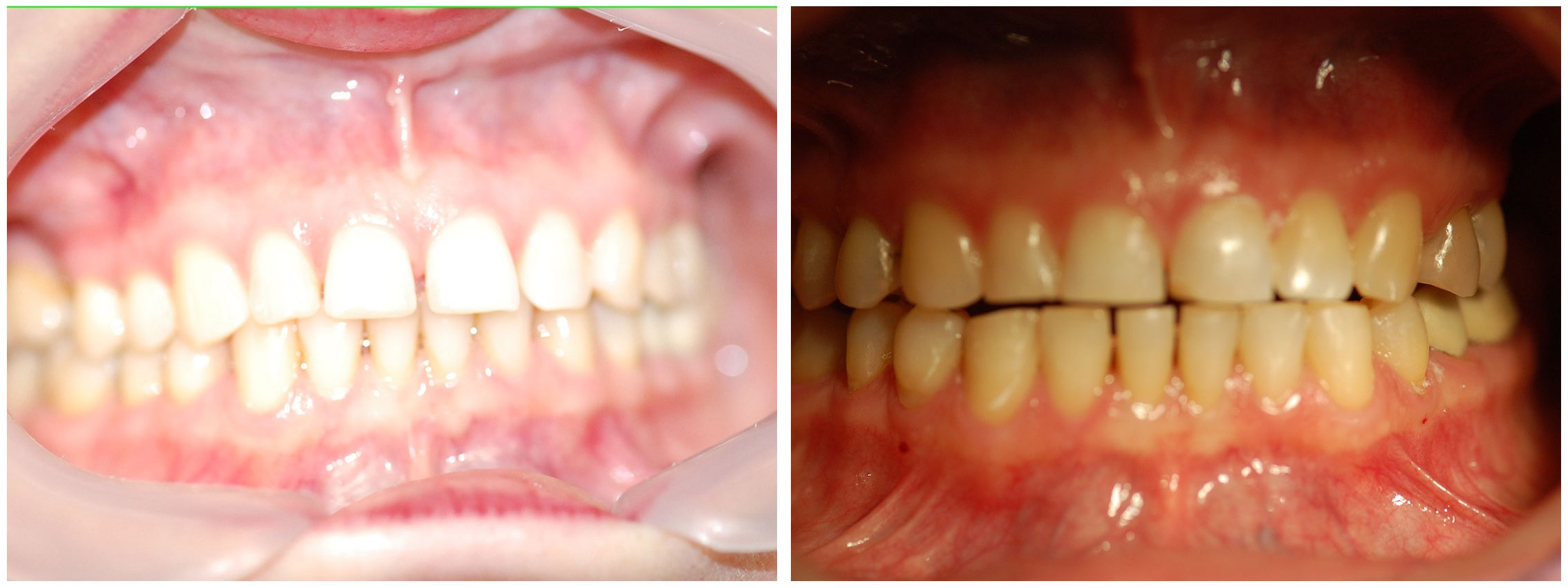 Pedodontic Dental Braces Before & After