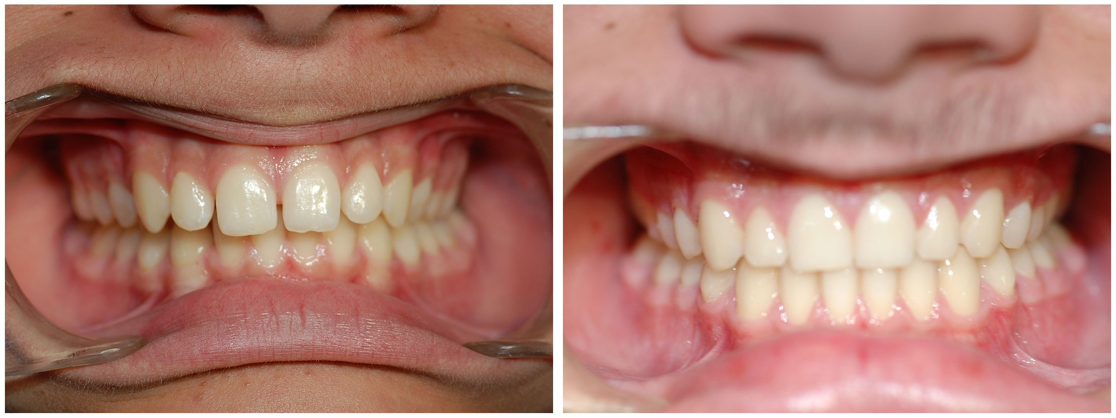 Pedodontist Dental Braces Treatment Before & After