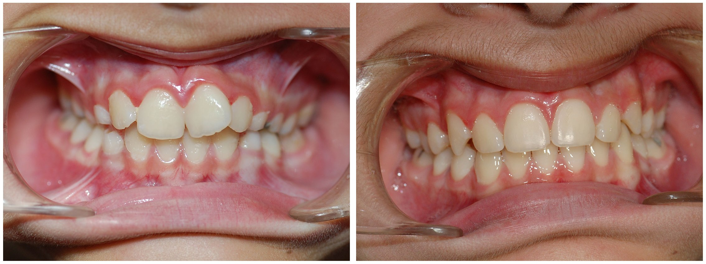 Pedodontist Dental Braces Before & After