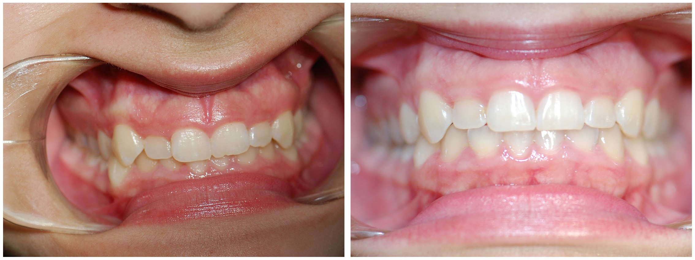 Periodontic Dental Braces Treatment Before & After