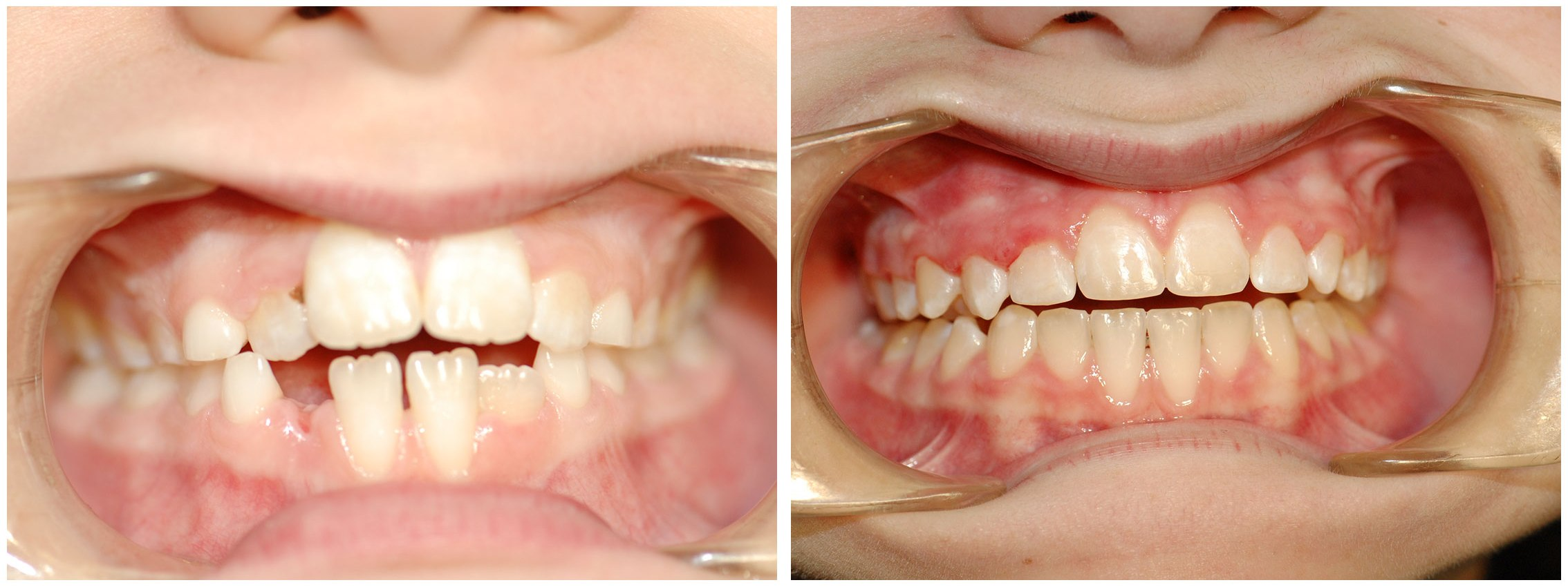 Periodontic Dental Braces Before & After