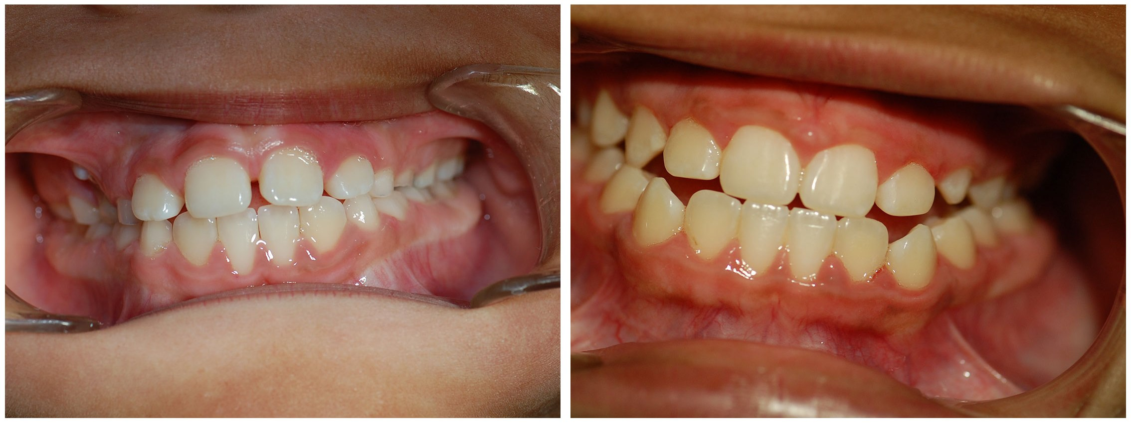 Periodontist Dental Braces Treatment Before & After
