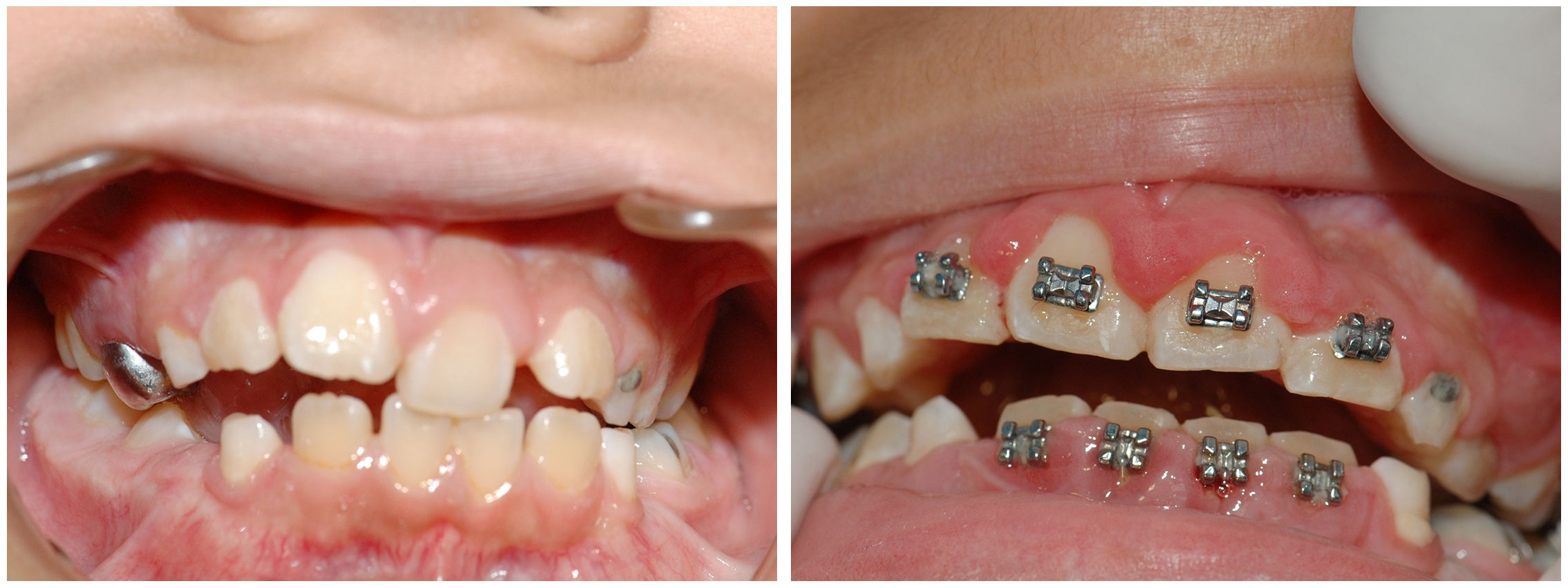 Periodontist Dental Braces Before & After