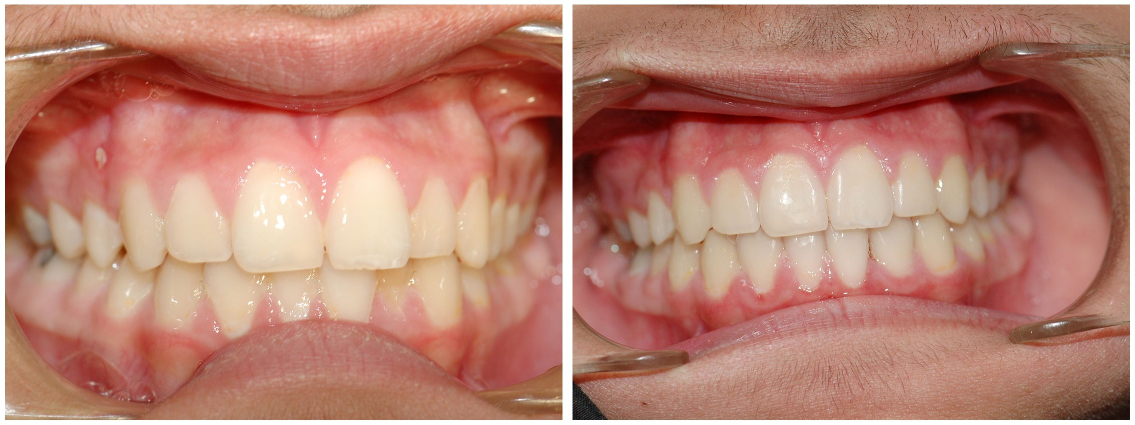 Redwood City Dental Braces Treatment Before & After